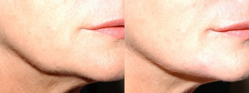 fillers for jowls edinburgh