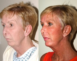 chin implants scotland