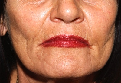 peri-oral wrinkles - before