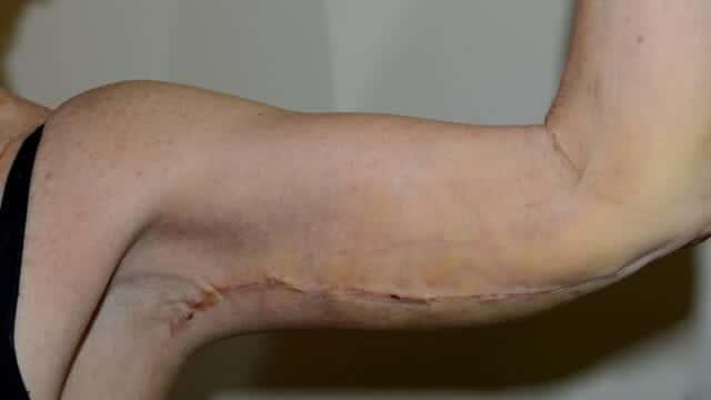 Arm lift scar at 7 days