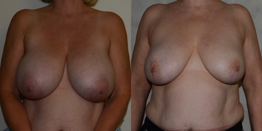 Breast Reduction without Scars