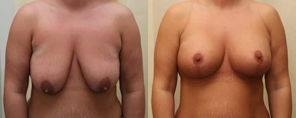 Breast lift combined with implants