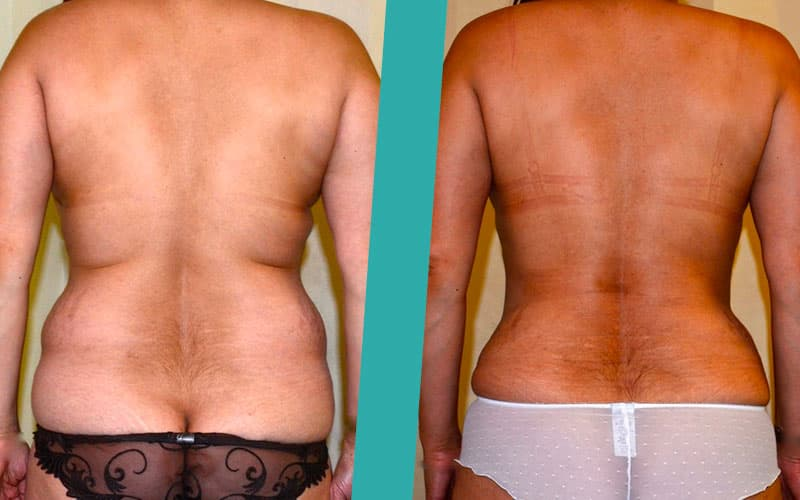 post weight loss liposuction